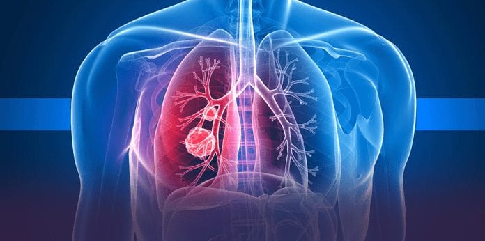 The What, Symptoms, Causes, And Treatment Of Mesothelioma (FAQs)