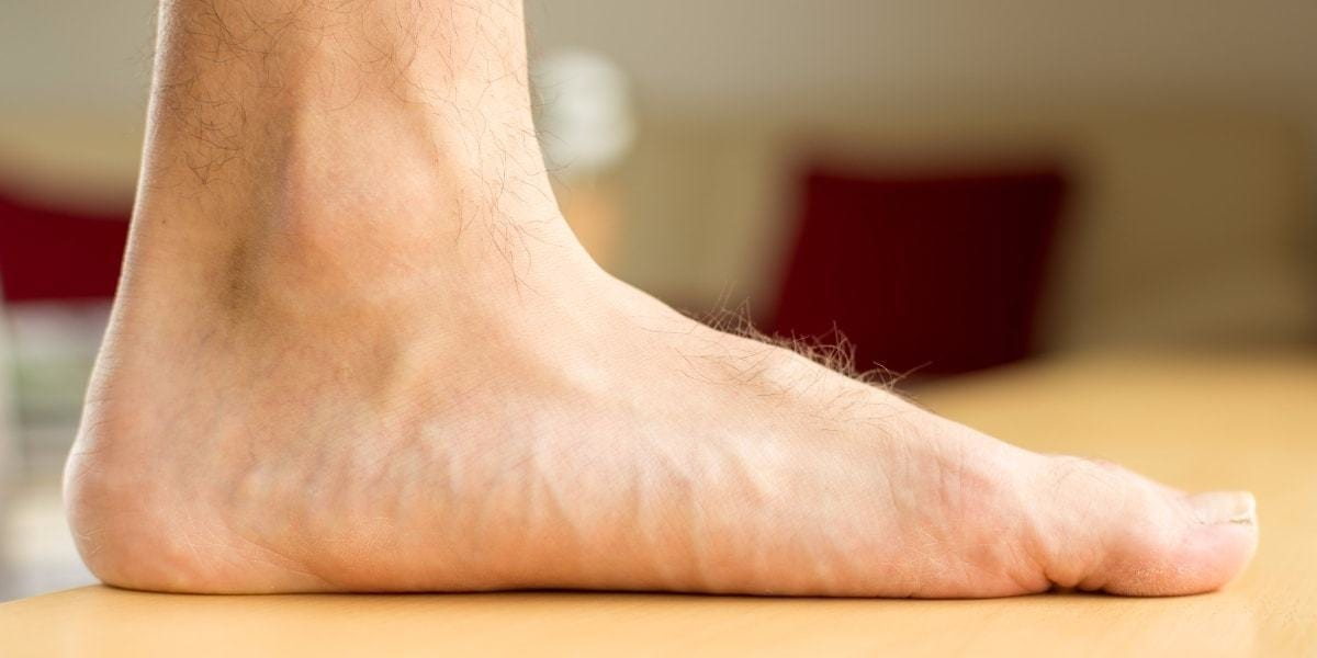 How To Overcome Flat Foot Conditions