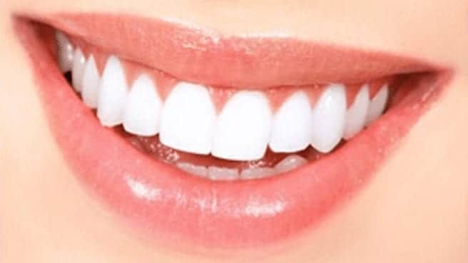 Natural ways to make your teeth white and shiny