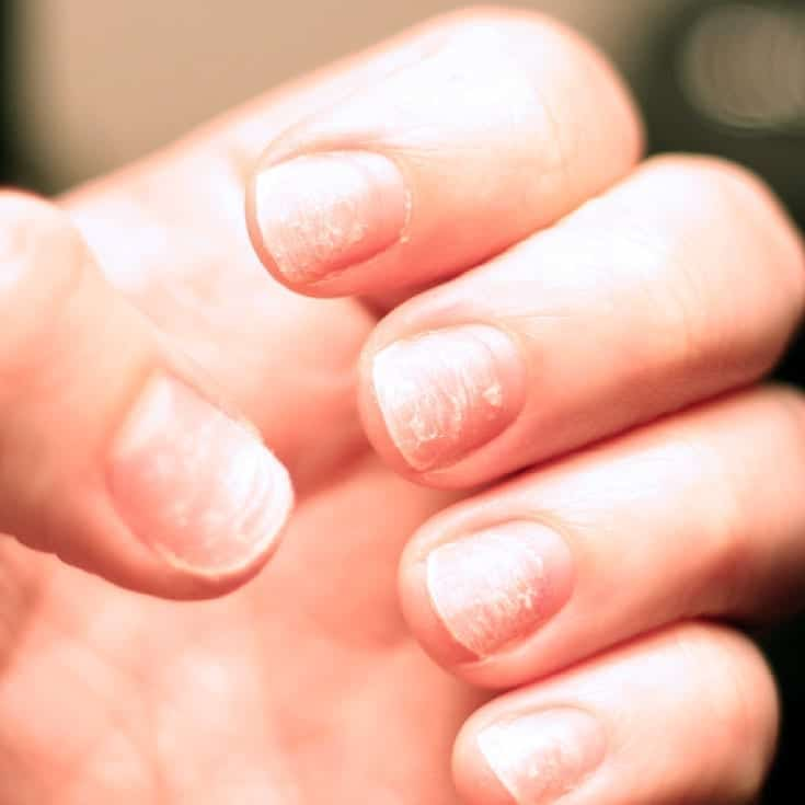 naturally treat brittle nails