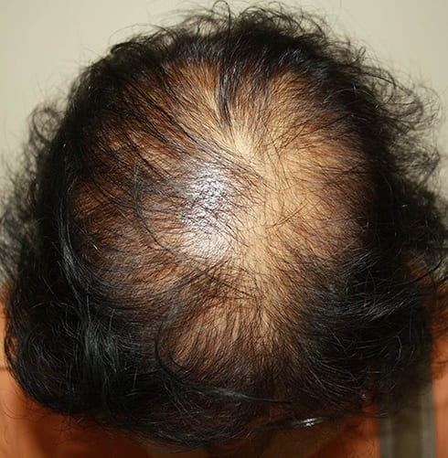 Finasteride hair loss solution