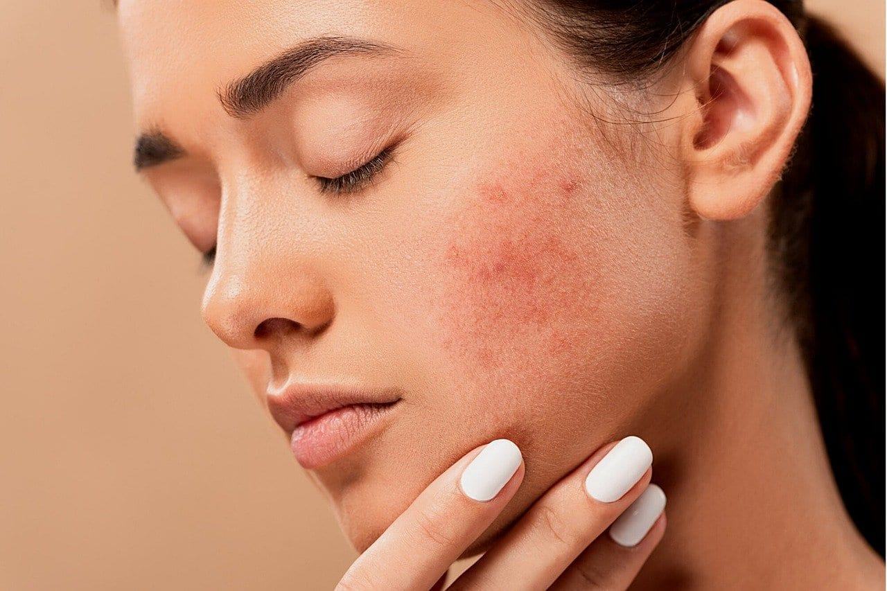 The all-in-one guide to acne treatment in Singapore